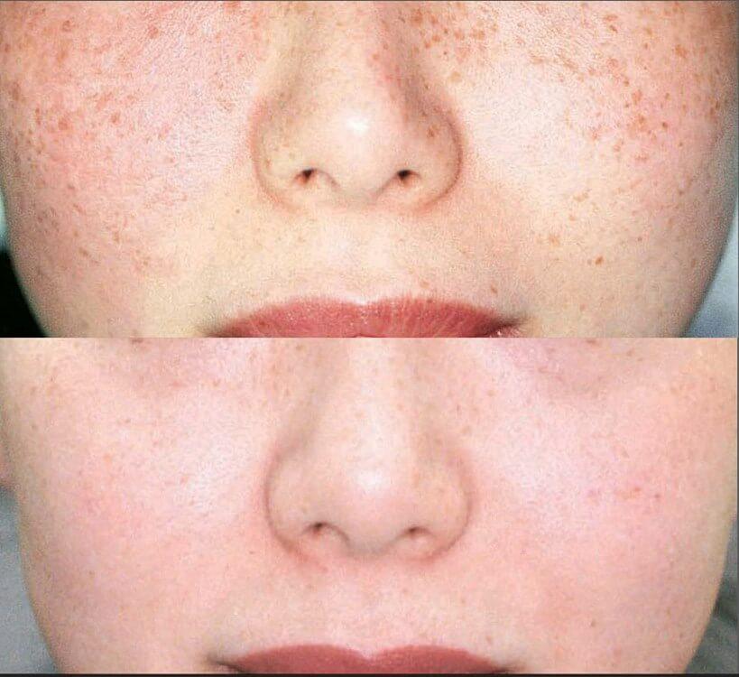 , IPL Photofacial – Skin Revitalization