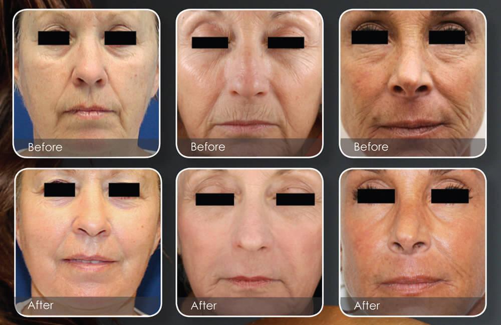 fractional laser skin resurfacing, Fractional Laser Skin Resurfacing in Overland Park, Kansas City