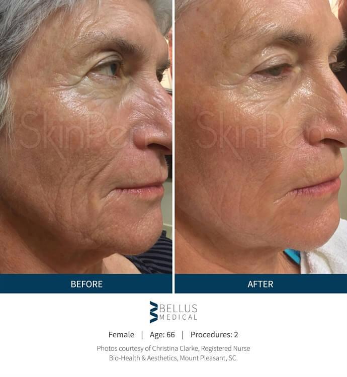 SkinPen Microneedling, SkinPen Microneedling
