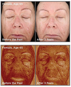 , Custom Chemical Peels